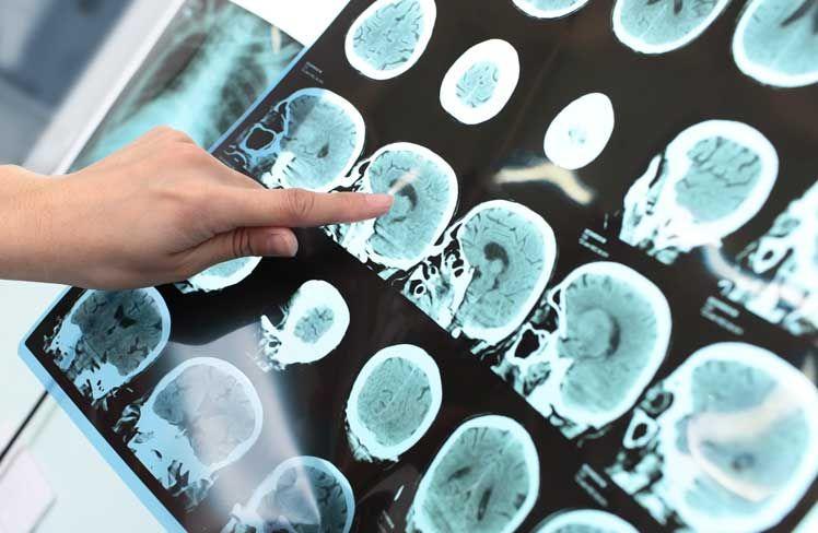 emf and dementia